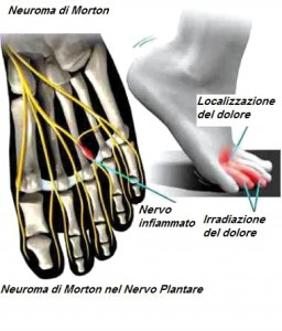 Mortons-neuroma-nerve-swelling