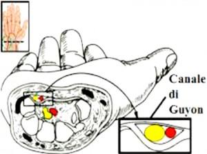nervo-ulnare-3