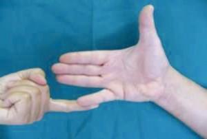 nervo-ulnare-4